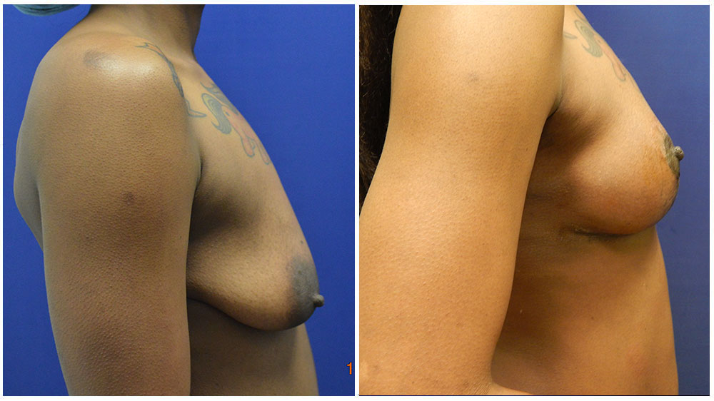 Fat Transfer Breast Augmentation Patient (32 Years)